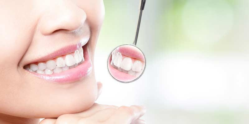 Frau mit strahlenden Zähnen